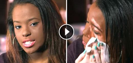 girl face vitiligo